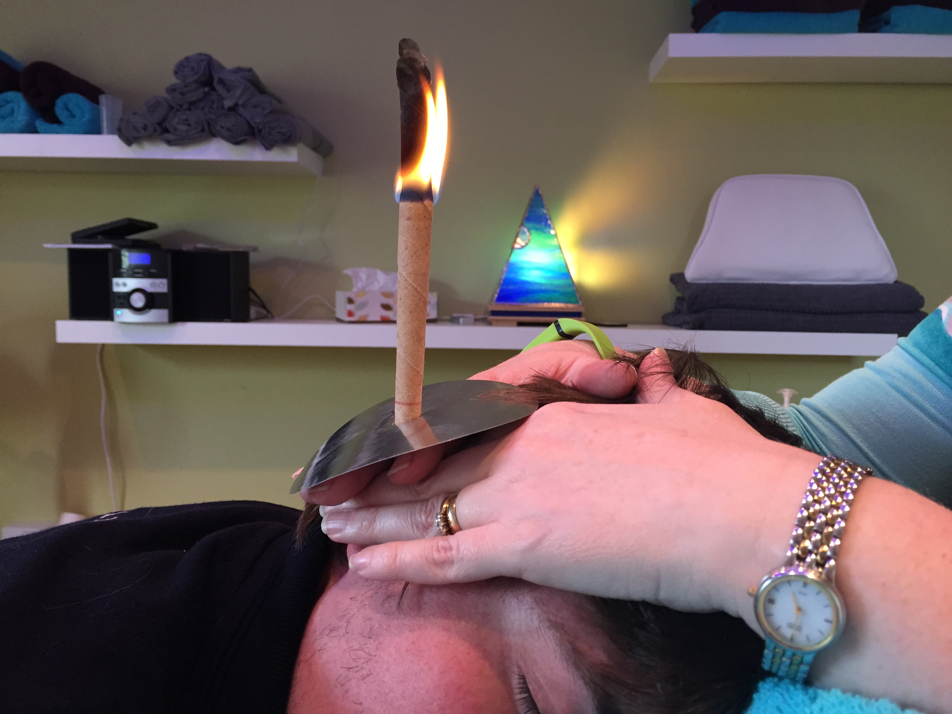 Hopi Ear treatments at therapy station